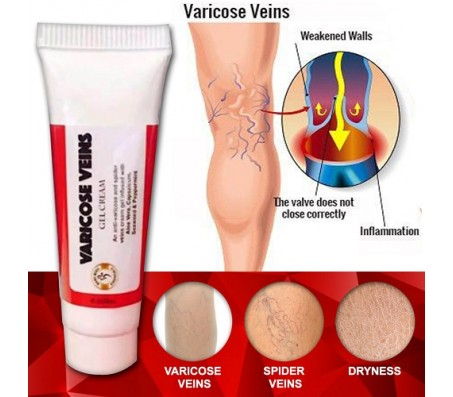 Varicose Veins Gel Cream